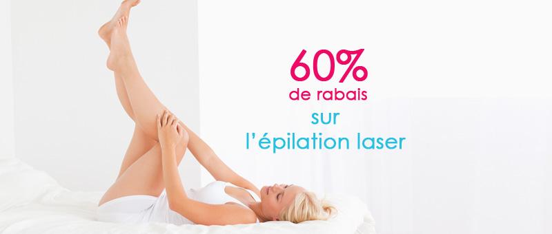 60% sur l'épilation laser